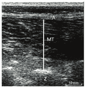 Muscle Thickness Ultrasound